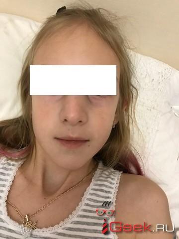 В школе №14 девятилетняя девочка получила перелом носа, а второклассник попал в больницу с сотрясением мозга